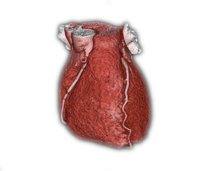 Bildmaterial: CT mit normalen Herzkranzgefäßen