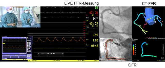 """Abb 1: """"Warten auf den FFR-Abfall"""". Nachtrag zum KHK-LIVE-CASE DKDT 2016. Sowohl in der QFR (Fa. Medis) aus den biplanen Angiographiedaten, als auch in der nachträglich bestimmten CT-FFR (Fa. HeartFlow) aus CT-Daten konnte korrespondierend zu den invasiv ermittelten Werten keine hämodynamische Relevanz einer visuell hochgradigen distalen RCA-Stenose nachgewiesen werden."""