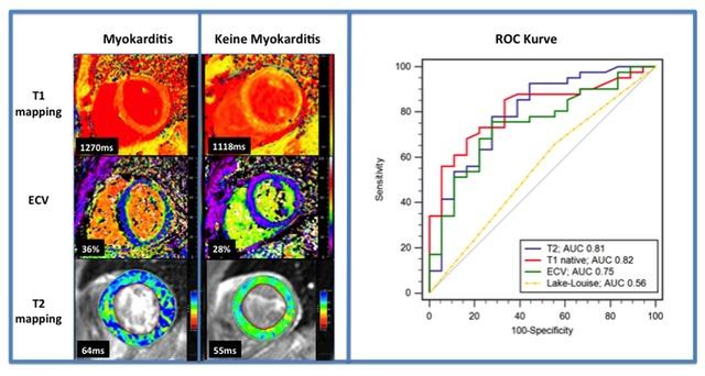 Links: T1 Zeiten auf 3.0 Tesla, berechnetes extrazelluläres Volumen sowie T2 Zeiten eines Patienten ohne (linke Spalte) und einen Patienten mit bioptisch gesicherter Myokarditis (rechte Spalte) mit höheren Werten bei Myokarditis für alle 3 Mapping-Parameter. Rechts:   Receiver operator Kurven (ROC) von 61 Patienten mit V.a akute Myokarditis mit höheren AUCs für das native T1 mapping, berechnetes extrazelluläres Volumen (0.75) sowie T2 mapping verglichen mit den Lake-Luise-Kriterien (adaptiert von Referenz 2).