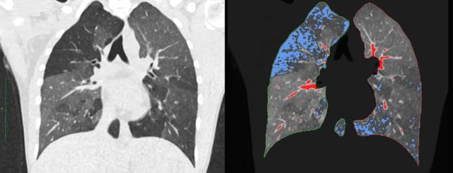 """Linke Seite: reguläres CT bei Verdacht auf COPD. Rechte Seite: darübergelegtes qCT. Die blauen Areale stellen die für die COPD typische, gefangene Luft dar (""""air trapping""""). Die roten Abschnitte zeigen lediglich Gefäße und haben keinen pathologischen Wert."""