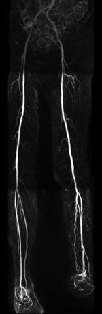 Darstellung der Becken- und Bein-Arterien mittels kontrastmittelgestützter MR Angiografie.