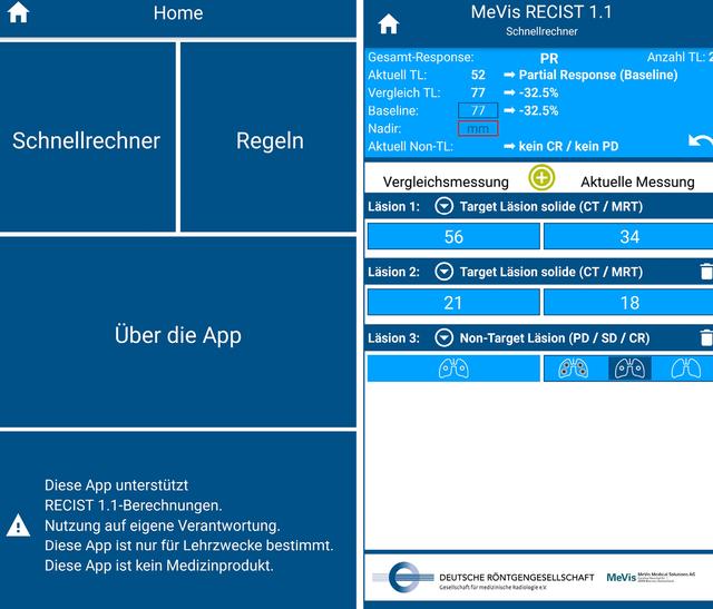 Die RECIST-App können Sie ab sofort im Google Play Store (für Android-Geräte) sowie im App Store (für iOS-Geräte) herunterladen.