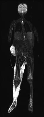 Ganzköper-MRT bei einem 5-jähriger Jungen mit einem PTEN-Hamartom-Tumor-Syndrom (PHTS). Es wurden verschiedene Tumorentitäten diagnostiziert: u.a. Lymphangiome, ein Lipoblastom und eine Nephroblastomatose. Die MRT wird regelmäßig zum Therapie-Monitoring wiederholt. Zur Zeit, Targeted Therapie mit Sirolimus.