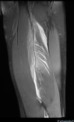 Das MRT-Bild zeigt eine myotendinöse Verletzung am M. biceps femoris (Oberschenkel) mit deutlicher lokaler Einblutung.